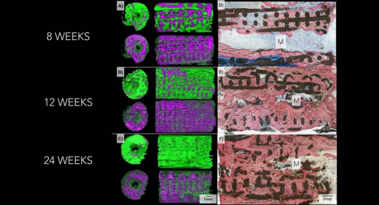 Three-dimensional imaging on the left shows how bone (pictured in green) replaced the bioactive ceramic scaffold (pictured in purple) over a six-month period. Microscope images on the right shows progressively increasing degrees of bone (stained pink) and lower amount of scaffold (black) as time goes by in the body. Image courtesy of Journal of Tissue Engineering and Regenerative Medicine.