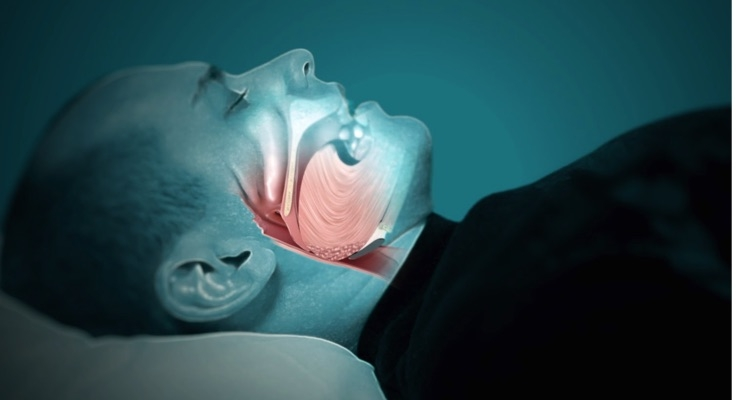 Obstructive sleep apnea is a potentially serious sleep disorder in which breathing repeatedly stops and starts.