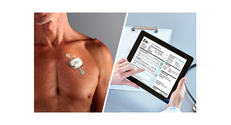 iRhythm Technologies combines wearable biosensing technology with cloud-based data analytics and machine- learning capabilities to diagnose cardiac arrhythmias. Image courtesy of iRhythm Technologies Inc.