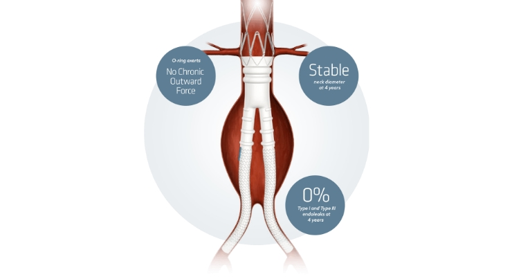 The Ovation Abdominal Stent Graft Platform is FDA-approved to treat the widest range of anatomies with a less invasive, clinically proven solution for patients with aortic disease. Image courtesy of Endologix.