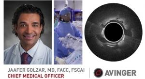 Avinger Appoints Chief Medical Officer