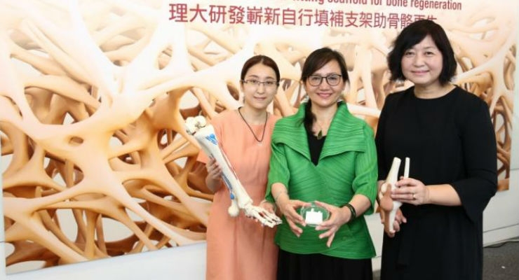Professor Hu Jinlian (centre) and Dr. Xie Ruiqi (left) from the Institute of Textiles and Clothing, and Dr. Guo Xia (right) from the Department of Rehabilitation Sciences. Image courtesy of The Hong Kong Polytechnic University.