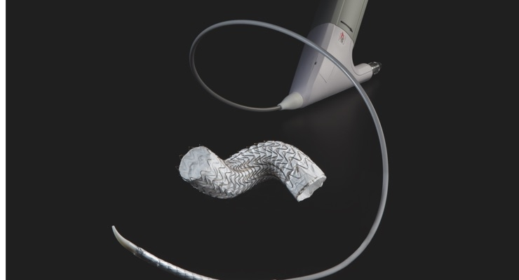 The GORE TAG Conformable Thoracic Stent Graft with ACTIVE CONTROL System features the same stent graft as the Conformable GORE TAG Device. Image courtesy of W.L. Gore.