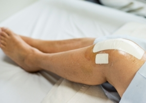 Self-Powered Sensor Monitors Joint Surgery Patients