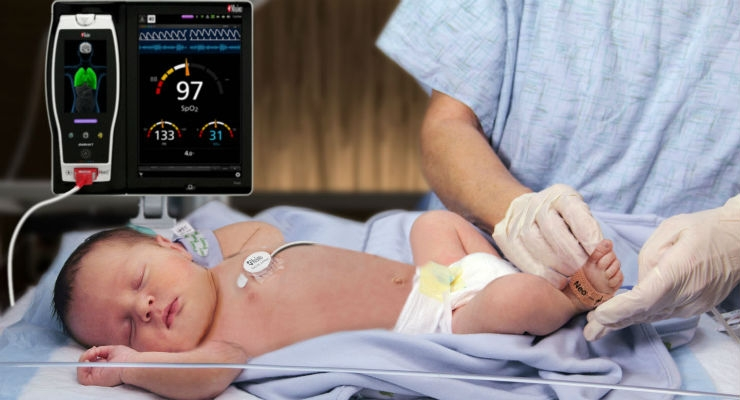 Masimo Root with Radical-7, RRa, and the RAS-45 Infant/Neonatal Sensor. Image courtesy of Business Wire.