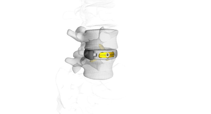 M3 Stand-Alone Anterior Lumbar (ALIF) System. Images courtesy of Business Wire.