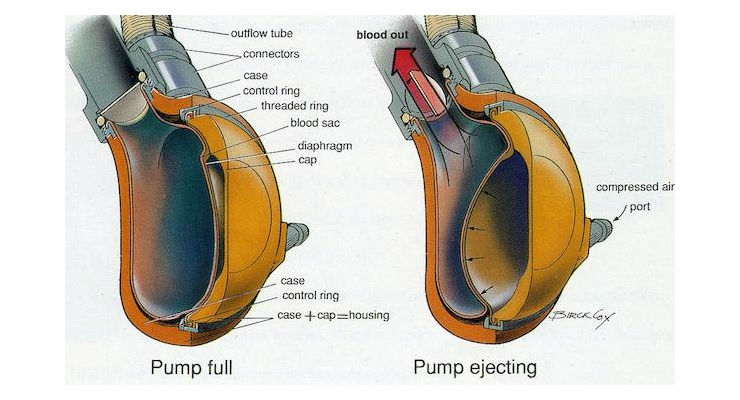 Heart pump design. Image courtesy of Penn State.