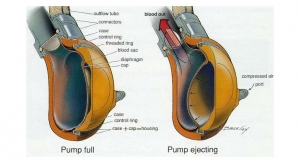 Building a Safer Heart Pump