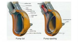 Building a Safer Heart Pump