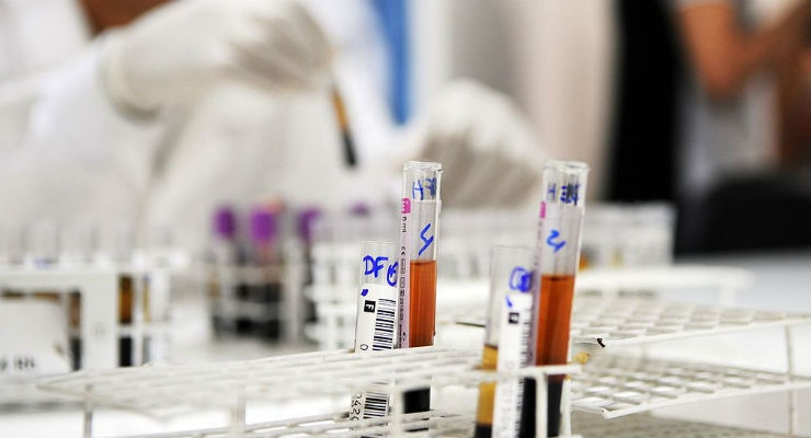 New Blood Test Spots Early Stage Pancreatic Cancer