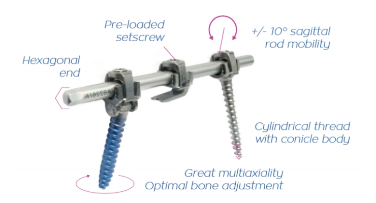 the P.L.U.S. is designed to make every step of spine deformity surgery more facile for the orthopedic surgeon—especially correction maneuvers before final locking. Image courtesy of SpineVision.