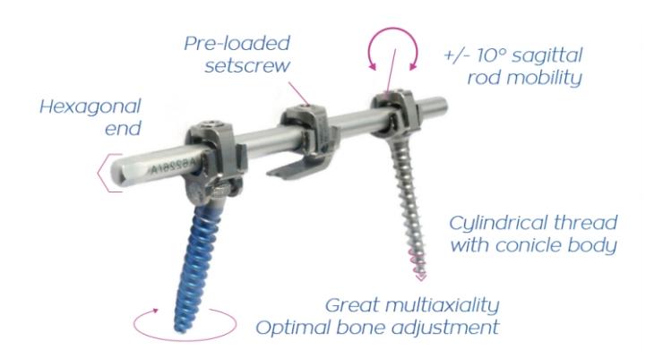 NASS News: SpineVision Unveils Next-Gen P.L.U.S. Deformity-Correction Spinal System