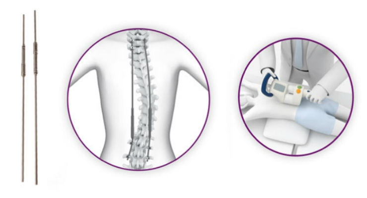 NuVasive Launches MAGEC X for Early Onset Scoliosis Treatment in the UK