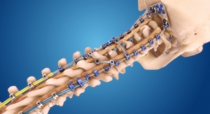 Medtronic Launches the Infinity OCT Spinal System at NASS