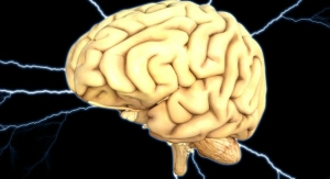 Deep Brain Stimulation for Alzheimer's Not for Everyone