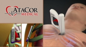 AtaCor Medical Raises $8.8M to Develop Substernal Cardiac Pacing System