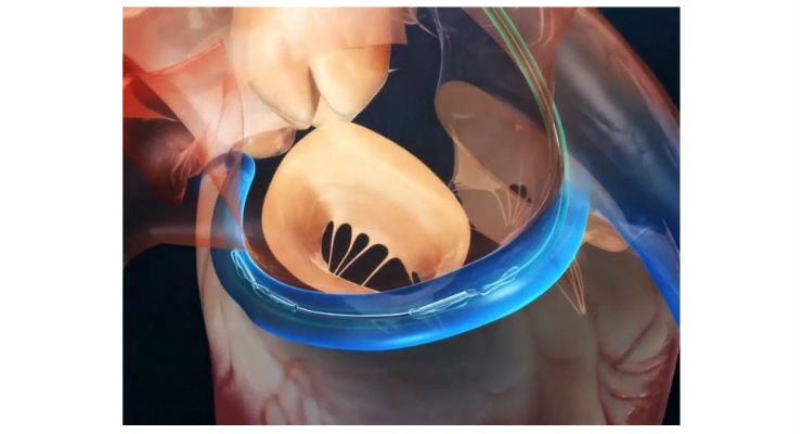 The Carillon device is currently the only right-sided implantable device designed and CE Marked to treat FMR. Image courtesy of Cardiac Dimensions.