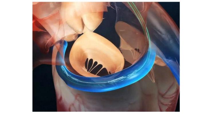 Cardiac Dimensions Announces Positive Results for Clinical Trial of MI Heart Failure Treatment