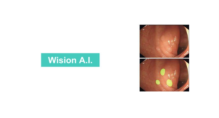 The Wision AI algorithm highlights polyps on the monitor, enhancing detection (bottom). Image courtesy of Shanghai Wision AI Co., Ltd.