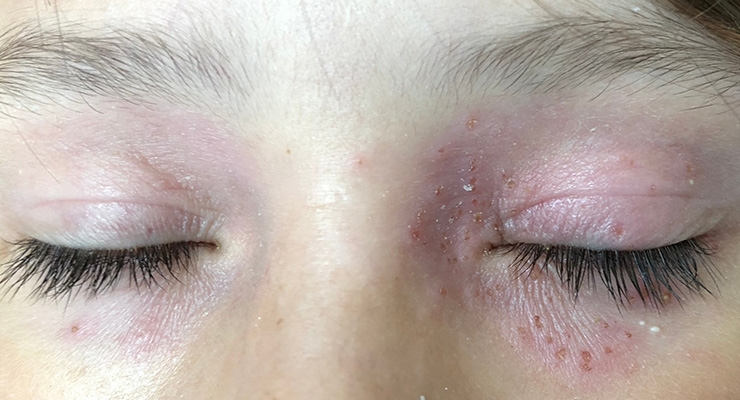 FDA Seeks Comments on Proposed Consumer Survey about Allergens in Cosmetics