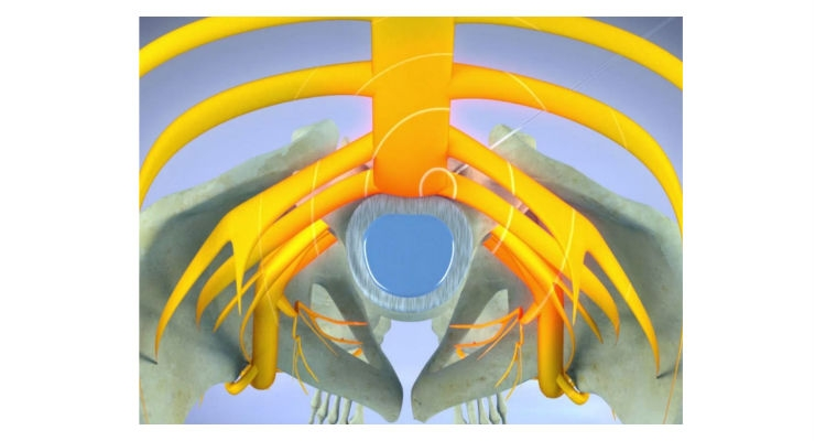 Illustration of pulsed radiofrequency applied to nerve root. Image courtesy of RSNA.