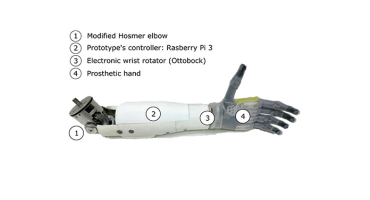 The arm prosthesis prototype used for the experiments, composed of a motorized elbow (1), an electronic wrist rotator (3) and a polydigital hand, the Touch Bionics Robolimb (4). Image courtesy of E. Montalivet.