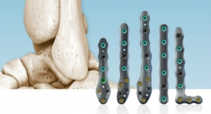 In2Bones Launches CoLink Afx Ankle Fracture Repair System