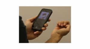 No Bleeding Required: Anemia Detection via Smartphone