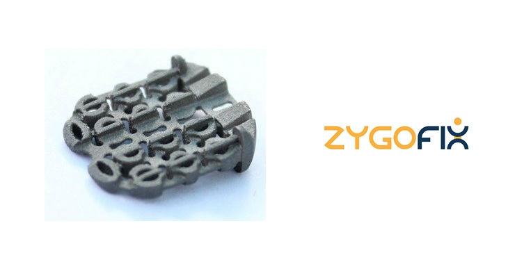 ZygoFix's zLOCK Implant.