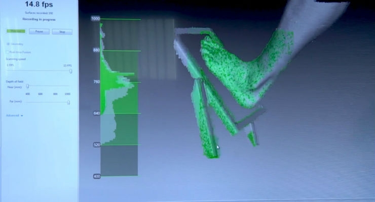 View of the screen as a patient's foot is scanned. Image courtesy of Artec 3D.