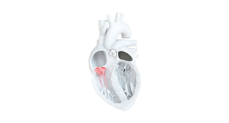 Tricuspid regurgitation (TR) is a disorder in which the heart's tricuspid valve does not close properly. Image courtesy of 4TECH.
