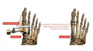 Treace Medical Enrolls First Patient in ALIGN3D Post-Market Clinical Study