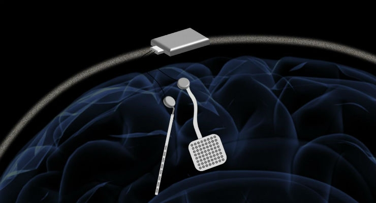 In a proposed device, two of the new chips would be embedded in a chassis located outside the head. Each chip could monitor electrical activity from 64 electrodes located into the brain while simultaneously delivering electrical stimulation to prevent unwanted seizures or tremors. All images courtesy of Rikky Muller, UC Berkeley.