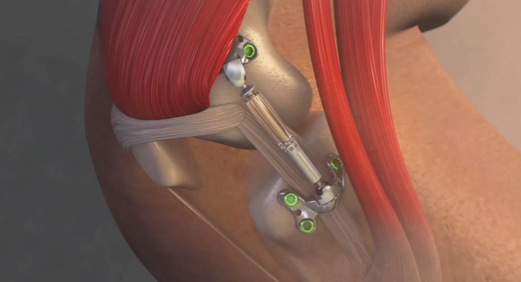 First-Ever Surgery Tests Device to Prevent Knee Replacements