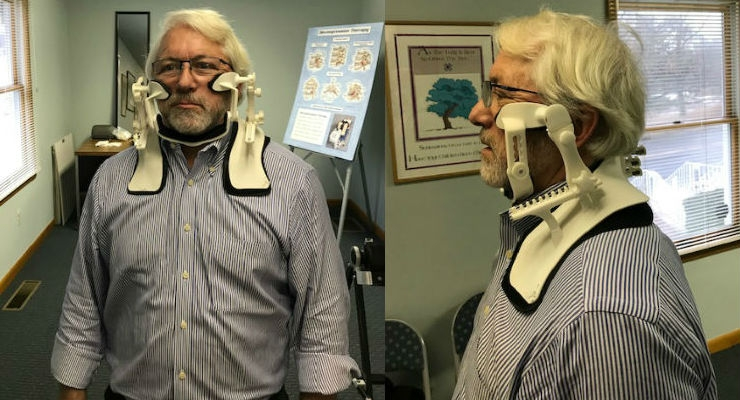 The Cervigard Forward Head Posture Neck Collar can be used to address the pain and other concerns that are caused by