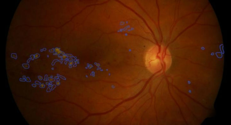 A fundus image of a retina, with damaged areas highlighted by the image-processing algorithm. Image courtesy of RMIT University.