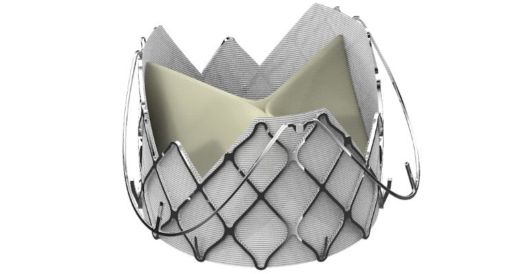 First U.S. Patient Treated with JC Medical's J-Valve TAVR Device