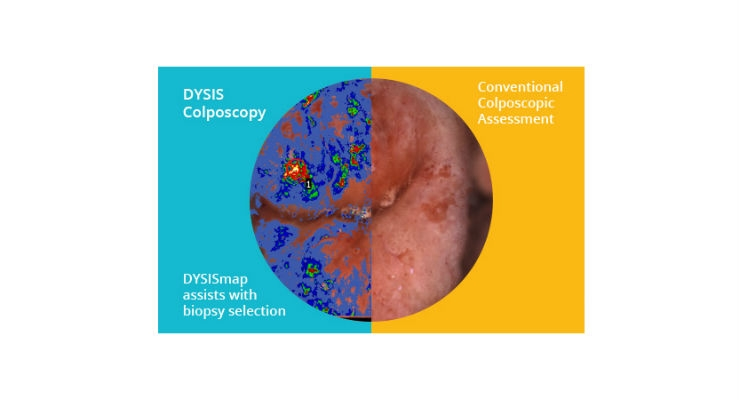 DYSIS Medical Appoints New CEO and Chief Commercial Officer