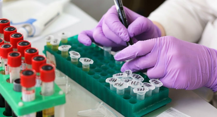 Coming Soon: A Blood Test for Alzheimer