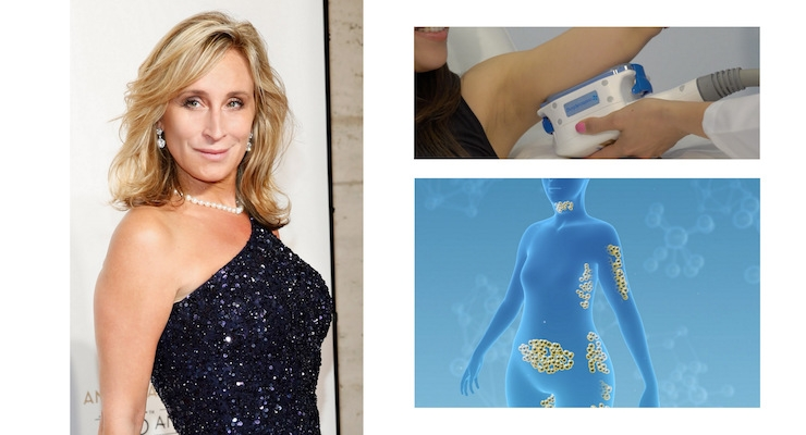 CoolSculpting Recruits Real Housewives