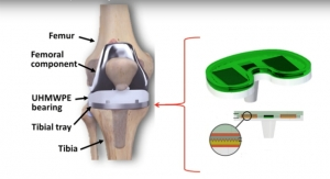 Smart, Self-Powered Knee Implants Could Reduce Number of Replacement Surgeries