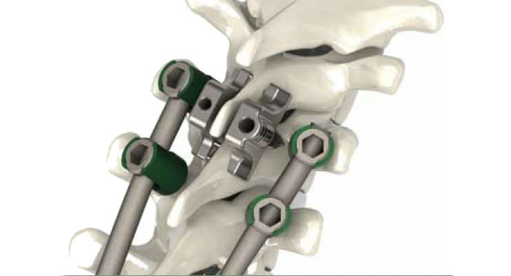 Southern Spine Launches Thoracic Dual Lamina Implants for StabiLink Interlaminar System