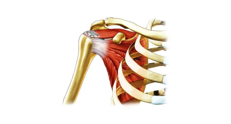 The principle aim of rotator cuff surgical intervention is to reattach the torn tendon to the bone. Image courtesy of Ortho RTi.