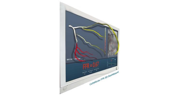 CathWorks FFRangio System Receives FDA Clearance