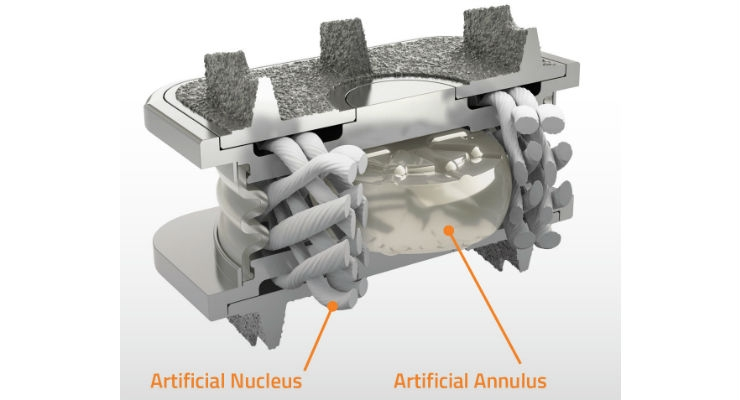 Illustration of the M6-C(TM) artificial cervical disc showing artificial visco-elastic nucleus and fiber annulus structures that mimics the anatomic design of a natural disc. Image courtesy of  Business Wire.