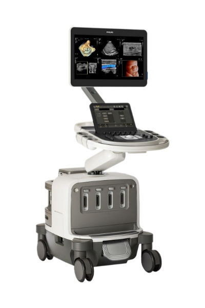 Philips Launches EPIQ Elite Ultrasound System For General