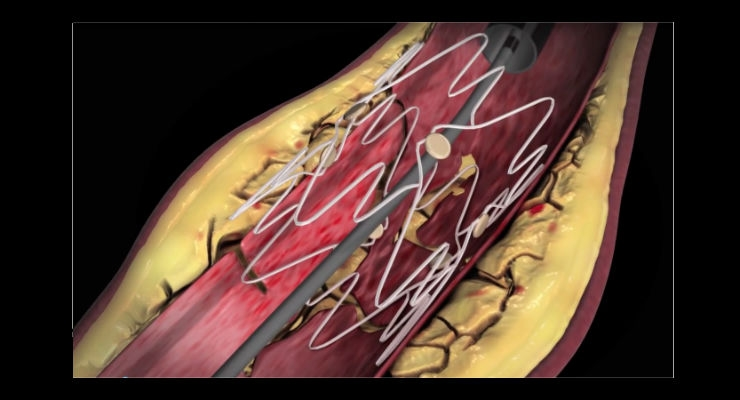 The Tack Endovascular System is designed to improve peripheral balloon angioplasty results in the treatment of peripheral arterial disease. Image courtesy of Intact Vascular.