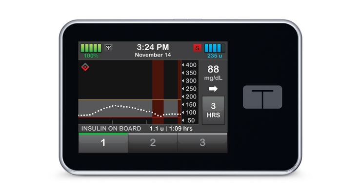 The interoperable t:Slim X2 pump works by delivering insulin under the skin at set or variable rates. Image courtesy of Tandem Diabetes Care.