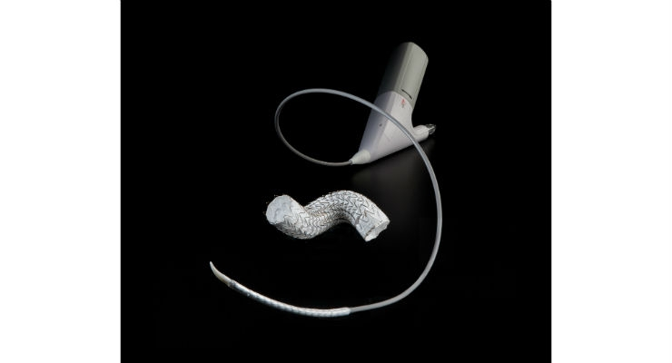 Gore Introduces GORE TAG Conformable Thoracic Stent Graft With Reduced Profiles in Europe