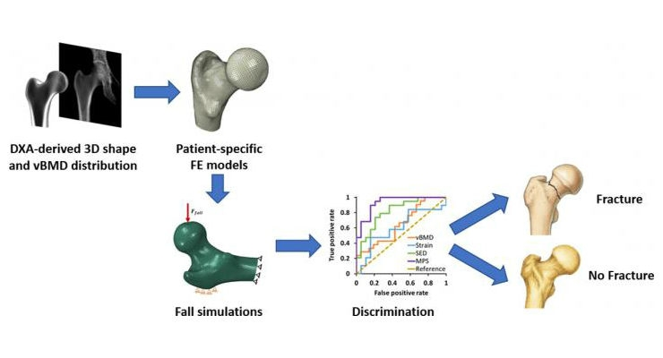 "Carlos Ruiz Wills, Andy Luis Olivares, Simone Tassani, Mario Ceresa, Veronika Zimmer, Miguel A. González Ballester, Luis Miguel del Riu, Ludovic Humbert, Jérôme Noailly (2019),""3D patient-specific finite element models of the proximal femur based on DXA towards the classification of fracturi and non-fracturi cases."" Image courtesy of UPF."
